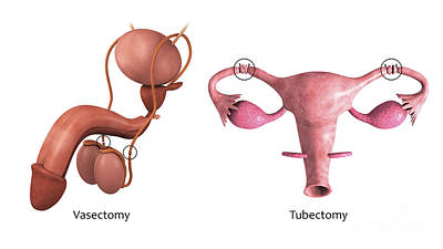 Biomedical Illustration Of A Vasectomy Poster