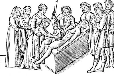 Cesarean Section 16th Century Poster by Science Source