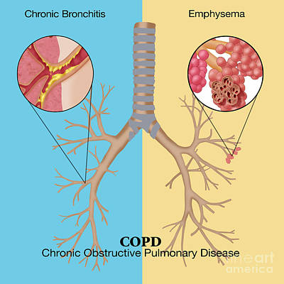 Chronic Obstructive Pulmonary Disease Poster by Monica Schroeder