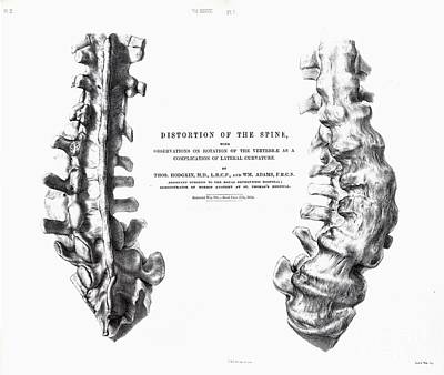 Distortion Of The Spine, Mantell, 1852 Poster by Paul D. Stewart
