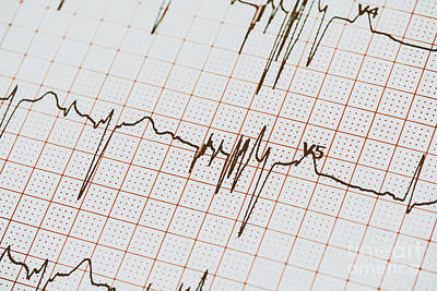 Extrasystoles On Electrocardiogram Poster by Radu Bercan