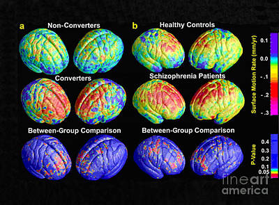 Schizophrenia, 3d Mri Scans Poster by Science Source