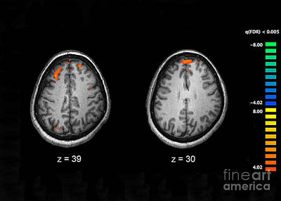 Schizophrenia, Mri Scans Poster by Science Source