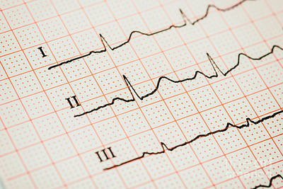 Sinus Heart Rhythm On Electrocardiogram Record Paper Poster by Radu Bercan