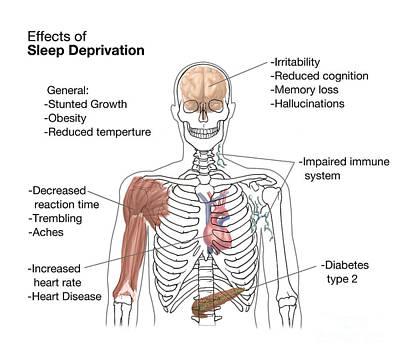 Sleep Deprivation Effects, Illustration Poster