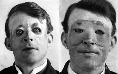 Walter Yeo, Wwi Plastic Surgery Patient Poster by Science Source