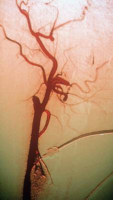 Designs Similar to Occluded Carotid Artery