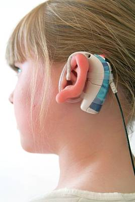 Designs Similar to Cochlear Implant