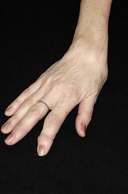 Designs Similar to Rheumatoid Arthritis