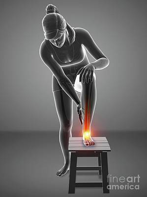 Designs Similar to Woman With Foot Pain