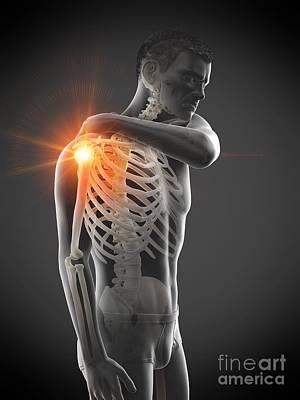 Designs Similar to Shoulder Pain 19