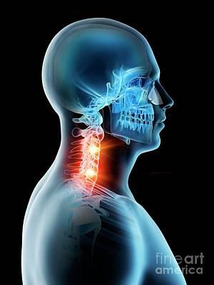 Designs Similar to Neck Pain 58
