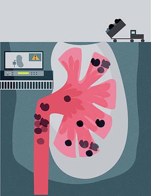 Designs Similar to Illustration Of Kidney Stone