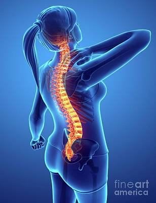 Designs Similar to Woman With Back Pain 16