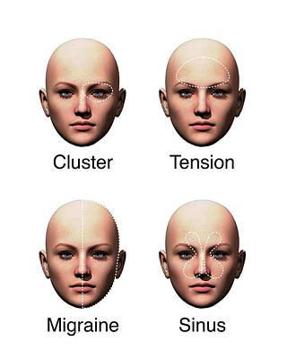 Cluster Headache Art | Fine Art America