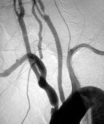 Designs Similar to Stenosis Of Arteries