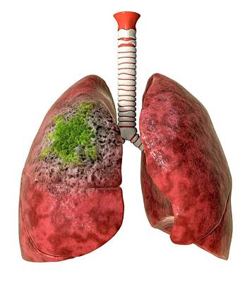 Designs Similar to Lung Cancer