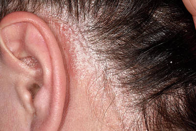 Designs Similar to Psoriasis On The Scalp