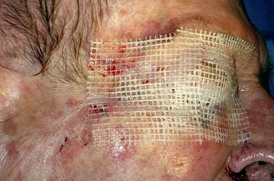 Designs Similar to Skin Cancer Surgery