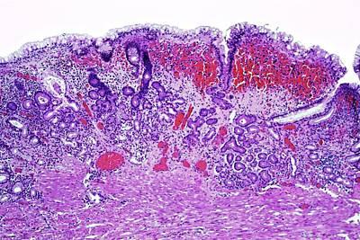 Gastritis Prints