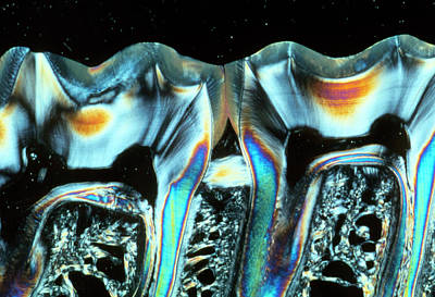 Designs Similar to Sectioned Teeth