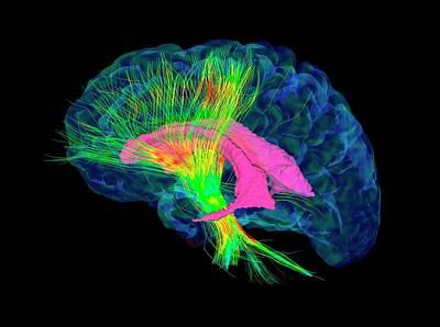 Designs Similar to Brain Fibres