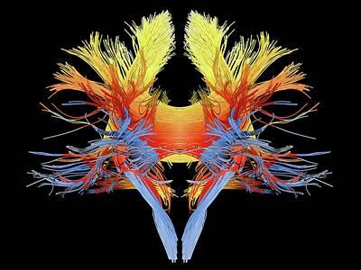 Brain Scan Prints