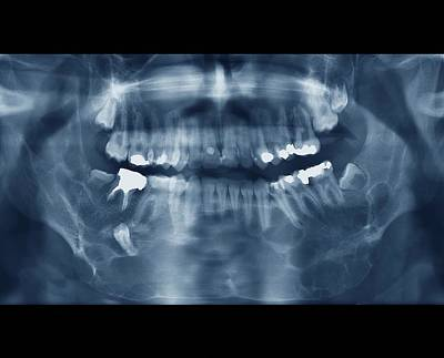 Designs Similar to Jaw Cancer (ameloblastoma)