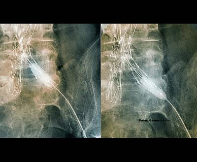 Designs Similar to Balloon Angioplasty by Zephyr