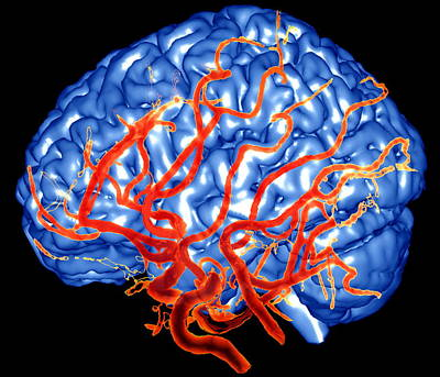 Designs Similar to Brain And Arteries
