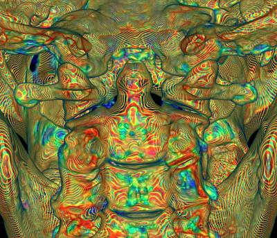 Occipital Bone Photographs