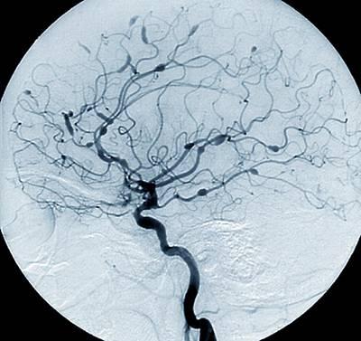 Designs Similar to Cerebral Aneurysms In Lupus