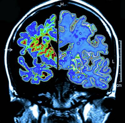 Designs Similar to Alzheimer's Brain by Pasieka