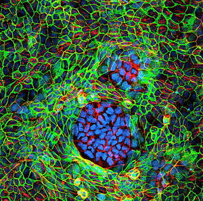Designs Similar to Cancer Cells by