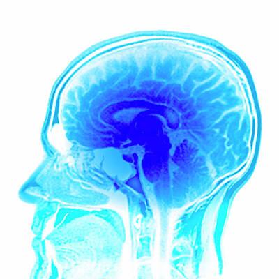 Designs Similar to Brain Anatomy by Pasieka