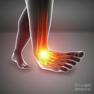 Designs Similar to Man With Foot Pain