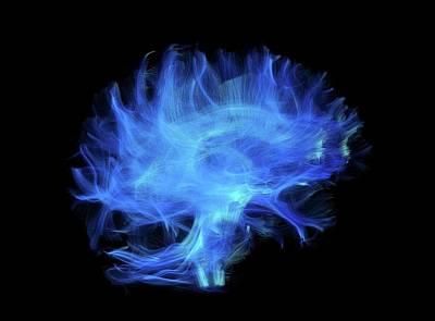Cerebrum Photographs