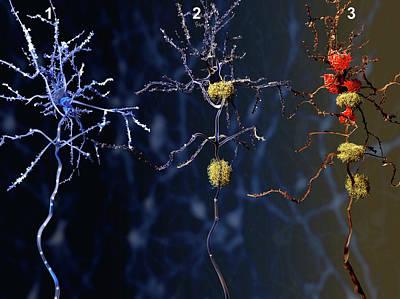 Hippocampus Photograph - Alzheimer's Disease by Juan Gaertner