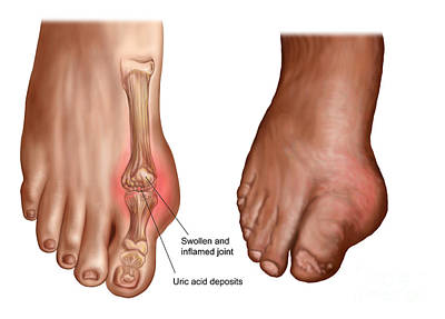 Human Joint Digital Art - Anatomy Of A Swollen Foot by Stocktrek Images