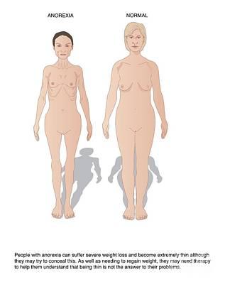 Anorexia, Artwork Print by Peter Gardiner