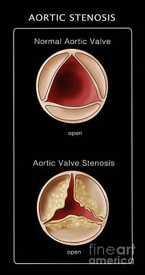 Info Graphic Photograph - Aortic Valve, Normal & Stenosis by Monica Schroeder