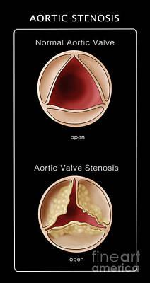 Aortic Valve, Normal & Stenosis Art Print by Monica Schroeder