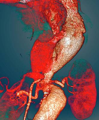 Arterial Aneurysms In Marfan Syndrome Art Print