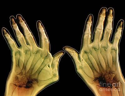 Arthritic Hands, X-ray Art Print by Zephyr