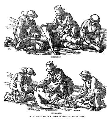 Artificial Respiration, 1864 Art Print