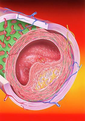 Atherosclerosis Art Print by John Bavosi