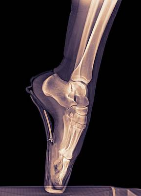 Ballet Dancer X-ray Art Print by Photostock-israel