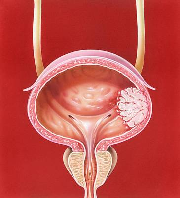 Bladder Tumour Art Print by John Bavosi