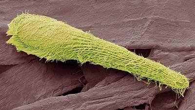Blepharisma Ciliate Protozoan Art Print by Steve Gschmeissner
