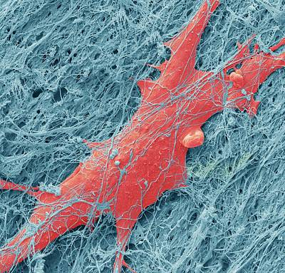 Cancer Photograph - Bone Cancer Cell by Steve Gschmeissner